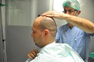 Préparation greffe de cheveux