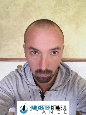 Photo avant greffe de cheveux FUE