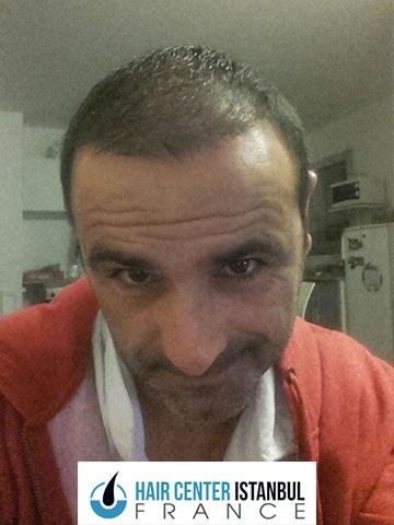 Photo après greffe de cheveux