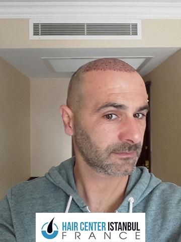 Photo pendant greffe de cheveux