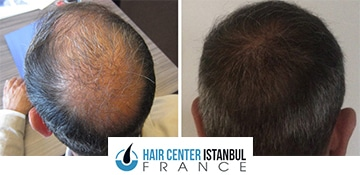 Avant / Après greffe de cheveux