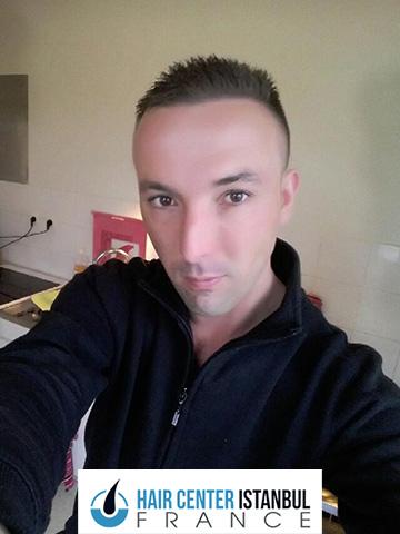 Photo après greffe de cheveux FUE
