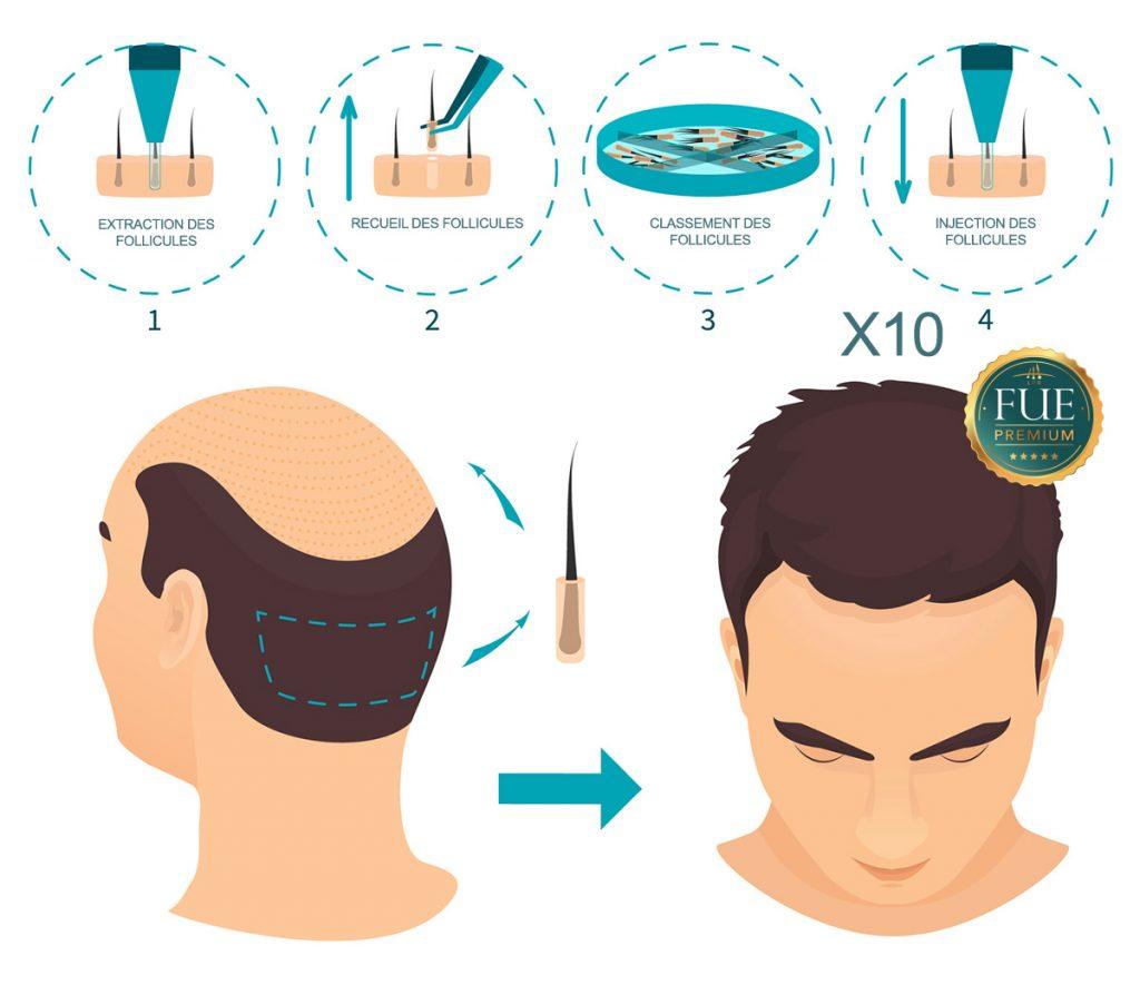 Greffe de cheveux FUE technique schèma